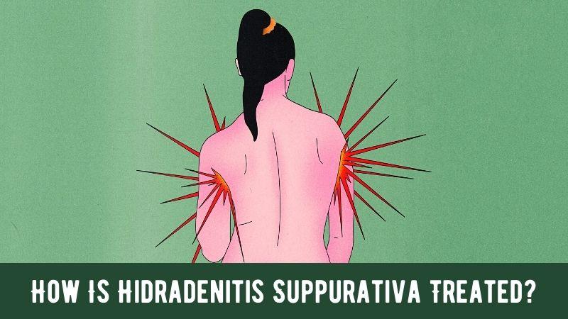 How Is Hidradenitis Suppurativa Treated